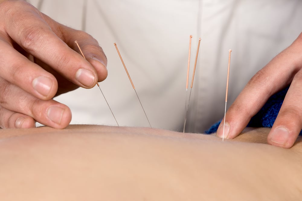 weight loss through acupuncture used by your chiropractor in omaha