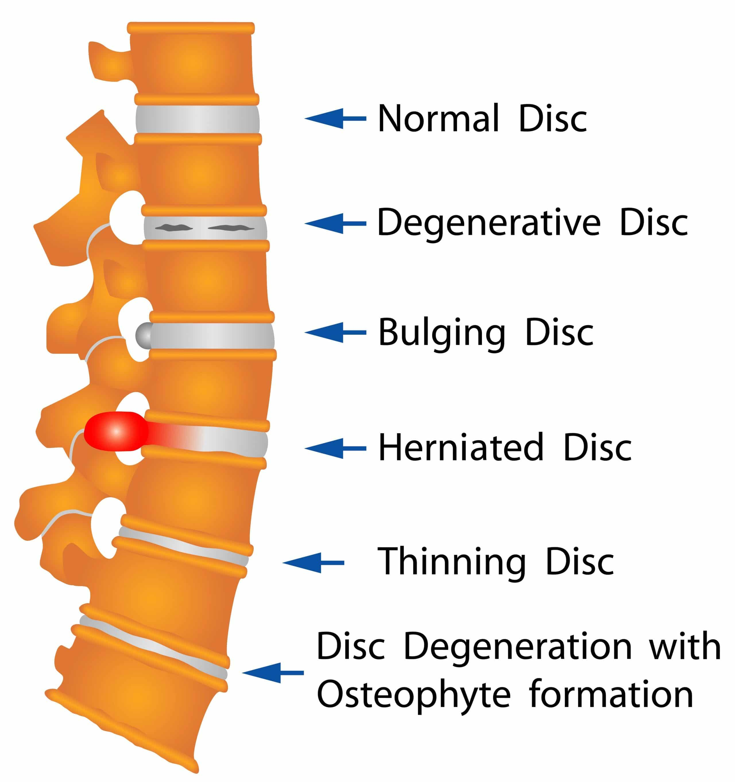 Image of disc disorders that cause back pain