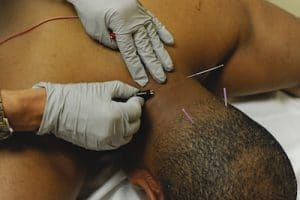 male patient receiving acupuncture treatments