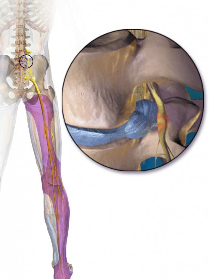 graphic image of sciatic nerve being pinched