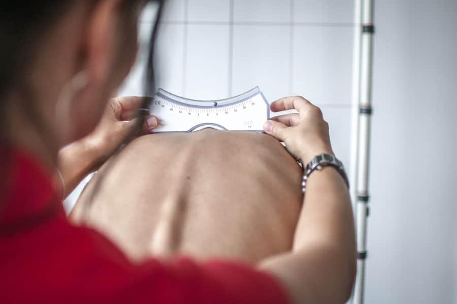 chiropractor examining scoliosis patient